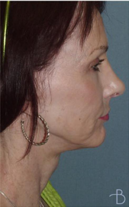 Browlift/Forehead Lift