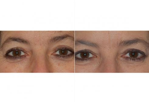 Botox/Fillers/Injectables