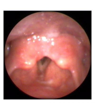 Affordable Health Care >> Reflux Edema Image Gallery at Voice & Swallowing Center