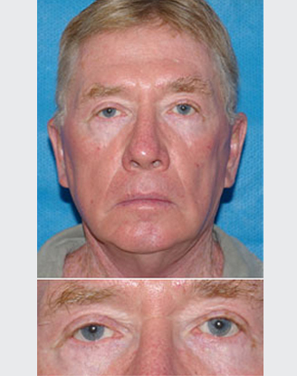 after image by Blepharoplasty - (Eyelid surgery)