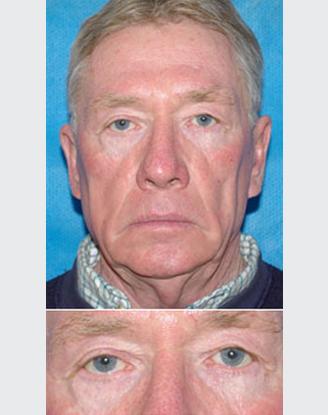 before image by Blepharoplasty - (Eyelid surgery)