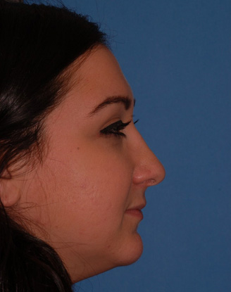 after image by This young woman was bothered by her dorsal hump but she wanted minimal overall change to her nose.  Through a closed approach we are able to give her a straighter dorsum maintaining a natural, unoperated look.