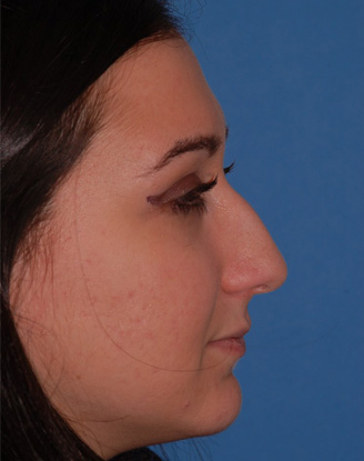 before image by This young woman was bothered by her dorsal hump but she wanted minimal overall change to her nose.  Through a closed approach we are able to give her a straighter dorsum maintaining a natural, unoperated look.