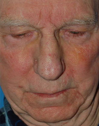 after image by This gentleman suffered a severe nasal fracture resulting in significant crookedness to his nose and nasal obstruction.  After a closed reduction in the office, I was able to realign the nasal bones and restore the natural appearance to his nose.  Not only is his nose much straighter, but his breathing markedly improved as well.