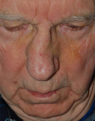 before image by This gentleman suffered a severe nasal fracture resulting in significant crookedness to his nose and nasal obstruction.  After a closed reduction in the office, I was able to realign the nasal bones and restore the natural appearance to his nose.  Not only is his nose much straighter, but his breathing markedly improved as well.
