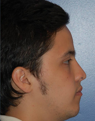 after image by This young man had a prior nasal surgery performed by another surgeon. He was unhappy with the flattened and