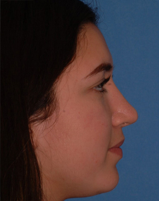after image by This is young girl suffered multiple nasal traumas and was unhappy with the bump on her nose. After open rhinoplasty, you can see she has a much straighter nasal bridge. This natural appearing change to her nose has dramatically helped her self-esteem and confidence.