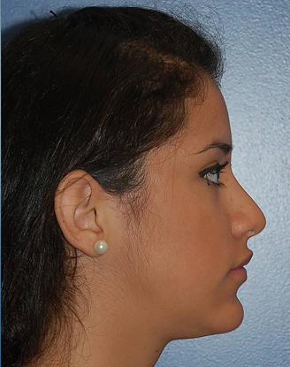 after image by This young girl was unhappy with the large hump on her nasal bridge. Through a closed rhinoplasty approach (no external scars), I removed the hump and gently lifted her nasal tip giving her a more natural, feminine appearance.