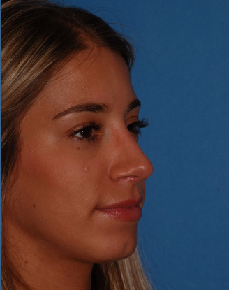 after image by This young woman was dissatisfied with the projection of her nose (stuck out too far from her face) and the hump.  After rhinoplasty, she has a much straighter bridge and a nice, natural supratip break.