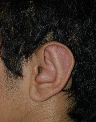 after image by This was a young man who was bothered by the prominence of his ears and he was getting teased at school by his friends.  He underwent otoplasty to help set the ears back and contour the underlying cartilages.  Postoperatively, he has a much more natural appearance and is now a more self-confident young man.