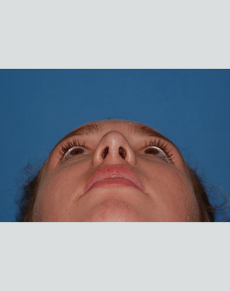 after image by This young woman was bothered by her amorphous and underprojected tip and dorsal hump.  After building up and refining the tip and smoothing her hump, she is ecstatic about her new, natural appearing nose.