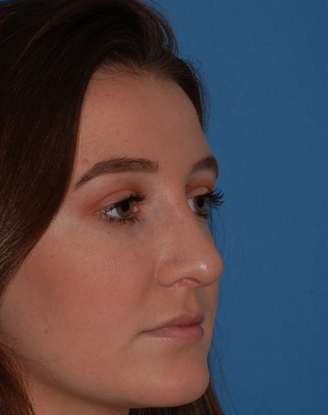 after image by This a young lady who suffered a nasal fracture and was bothered by the crookedness to her nose. After a closed (no external scars) rhinoplasty, I was able to get her nose straighter as seen on her frontal view and remove the slight bump that bothered her on her lateral view.