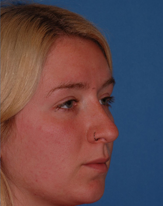 after image by This young girl was unhappy with her nose for years. After a closed (no external scars) rhinoplasty, you can see she has a much straighter nasal bridge and refined nasal tip. She is thrilled with her new natural appearing nose.