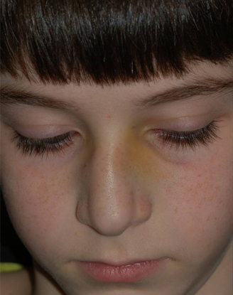 before image by This young boy got hit in the nose while playing soccer which made his nose crooked. After a closed reduction surgical procedure, the patient's nose is much straighter 1 week after the surgery.