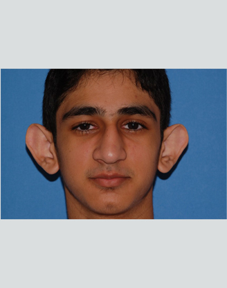 before image by This was a young man who was bothered by the prominence of his ears and he was getting teased at school by his friends.  He underwent otoplasty to help set the ears back and contour the underlying cartilages.  Postoperatively, he has a much more natural appearance and is now a more self-confident young man.