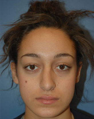before image by This young girl was bothered by the crookedness of her nose on the frontal view and the mild bump on the side view.  After surgery, her nose is straighter from the front and she has a smoother bridge.