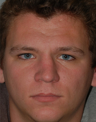before image by This gentleman suffered a nasal fracture which caused his nose to be crooked and affected his nasal breathing.  Without using any external incisions, I was able to get his nose straighter and dramatically improve his breathing.