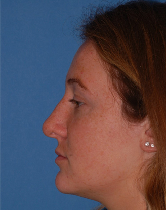 before image by This a young lady who suffered a nasal fracture and was bothered by the crookedness to her nose. After a closed (no external scars) rhinoplasty, I was able to get her nose straighter as seen on her frontal view and remove the slight bump that bothered her on her lateral view.