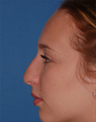 before image by This young woman was bothered by her amorphous and underprojected tip and dorsal hump.  After building up and refining the tip and smoothing her hump, she is ecstatic about her new, natural appearing nose.