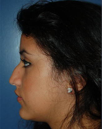 before image by This young girl was unhappy with the large hump on her nasal bridge. Through a closed rhinoplasty approach (no external scars), I removed the hump and gently lifted her nasal tip giving her a more natural, feminine appearance.