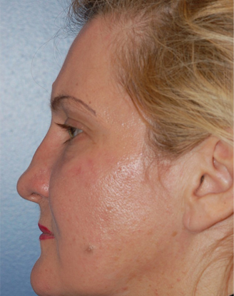 before image by This lady had trauma to her nose and aside from having a difficult time breathing, she also dislikes the resultant flattened appearance of her nose (