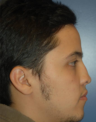 before image by This young man had a prior nasal surgery performed by another surgeon. He was unhappy with the flattened and