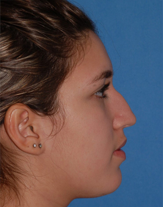 before image by This is young girl suffered multiple nasal traumas and was unhappy with the bump on her nose. After open rhinoplasty, you can see she has a much straighter nasal bridge. This natural appearing change to her nose has dramatically helped her self-esteem and confidence.