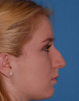 before image by This young girl was unhappy with her nose for years. After a closed (no external scars) rhinoplasty, you can see she has a much straighter nasal bridge and refined nasal tip. She is thrilled with her new natural appearing nose.