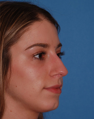 before image by This young woman was dissatisfied with the projection of her nose (stuck out too far from her face) and the hump.  After rhinoplasty, she has a much straighter bridge and a nice, natural supratip break.