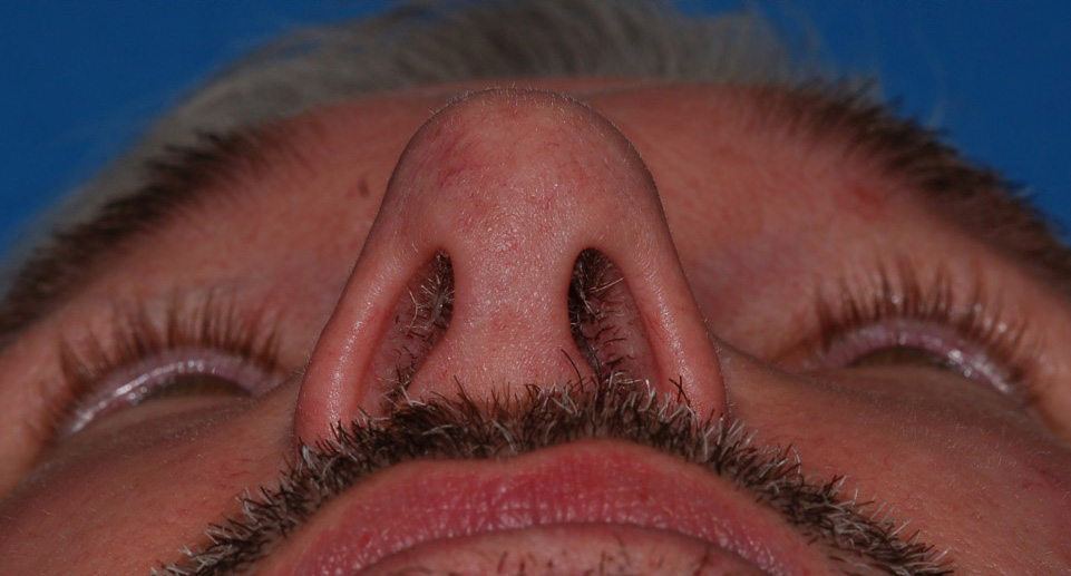 after image by This gentleman had longstanding history of difficulty breathing through his nose.  You can see how narrow and pinched his tip and nostrils are causing nasal obstruction.  He underwent an open rhinoplasty for functional (breathing) reasons to reconfigure his nasal cartilages and add support to his nose.  Postoperatively, his nose is much more open and his breathing has markedly improved.  Given the architectural dictum that form follows function, his nasal reconstruction both improved his breathing and made his nose look more natural.