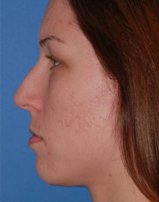 before image by This young woman was bothered by her dorsal hump but she wanted minimal overall change to her nose.  Through a closed approach we are able to give her the straighter dorsum with a subtle supratrip break.