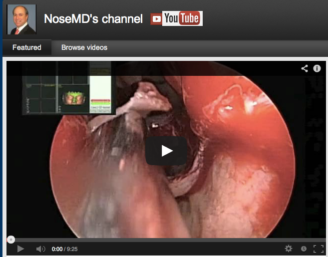 NoseMD Youtube