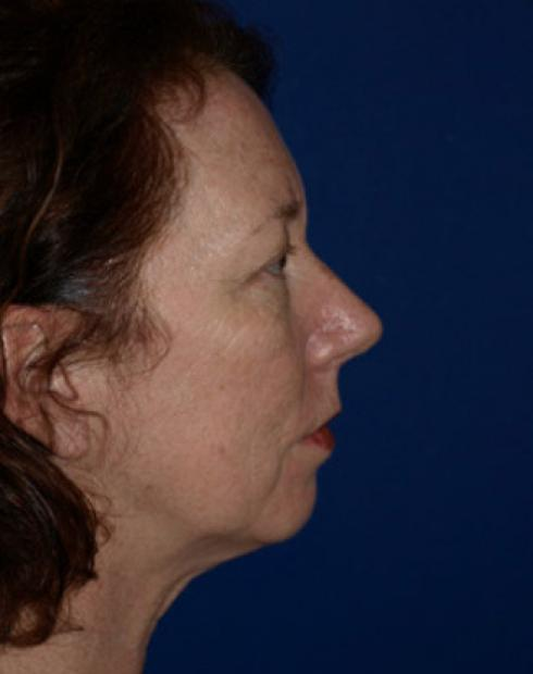 Cheek and chin implant