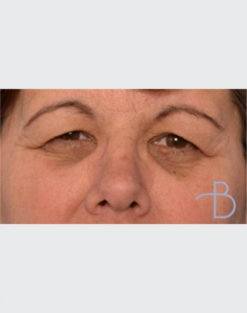 Blepharoplasty - (Eyelid surgery)