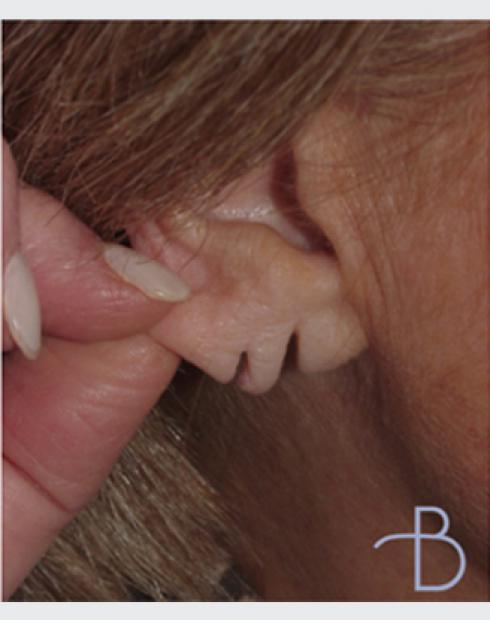 Otoplasty (Ear Pinning)