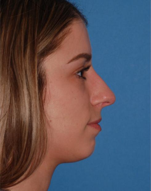 Rhinoplasty - (Nose Reshaping)