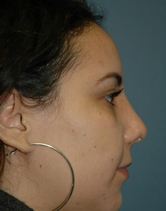Patient 1 After by Moshe Ephrat, MD, FACS