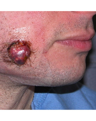 before by Moshe Ephrat, MD, FACS