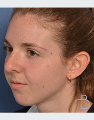 before by Agata K. Brys, MD