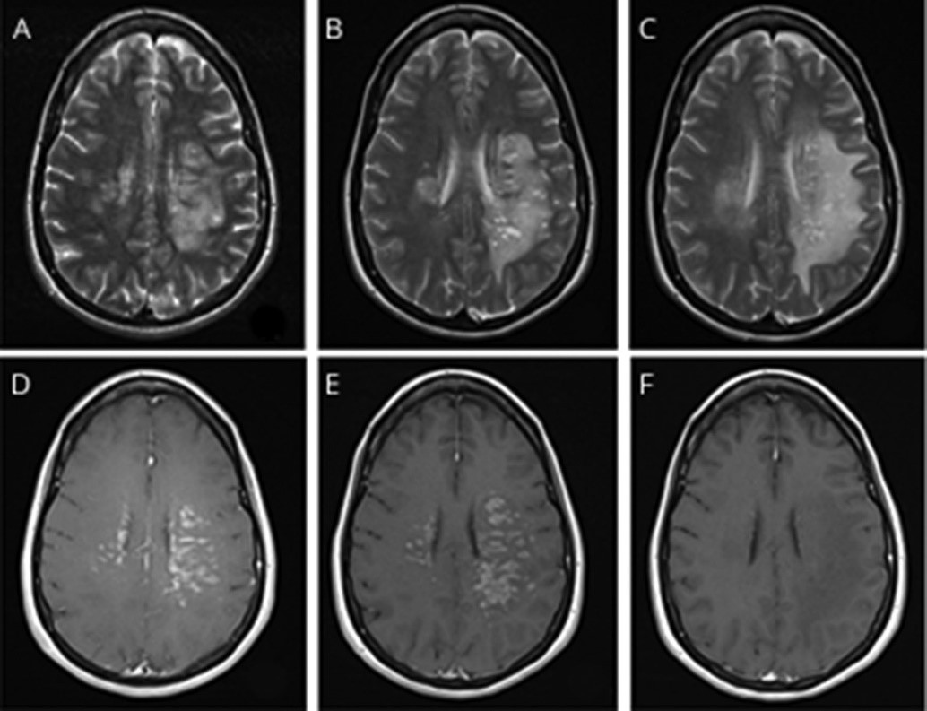 Brain vessel damage due to COVID-19